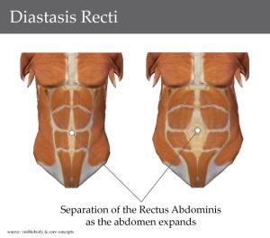 diastasis-recti