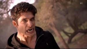Teen_Wolf_Season_3_Scott